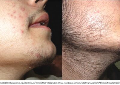 Paradoxical Hypertrichosis after laser